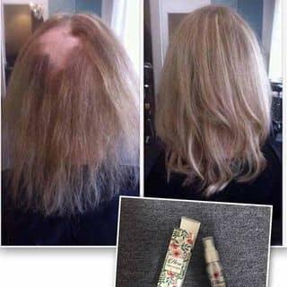 Kích thích mọc tóc Hera của visao2 tại Vĩnh Long - 2552570