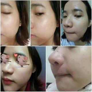Serum và face dưỡng trắng của gianganh24 tại Đà Nẵng - 2072216