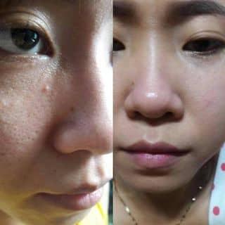 Thuốc bắc đẹp da của thienan138 tại Thừa Thiên Huế - 2053365
