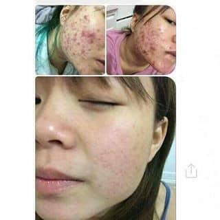 Thuốc chuyên trị mun, thâm nám, tàn nhang rổ của thanhloan53 tại Bình Phước - 2075868