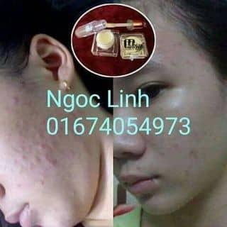 Tinh chất trị mụn M'white của truonghonglinh tại Đồng Nai - 2114470