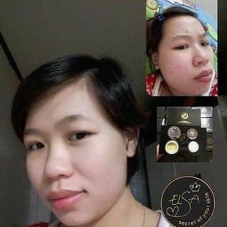 Trị mụn elsa acne của hautran56 tại ĐT 835,  Xã Mỹ Lộc, Huyện Cần Giuộc, Long An - 2491989