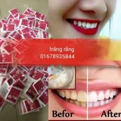 trắng răng trên LOZI.vn